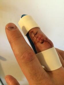 Splinted.